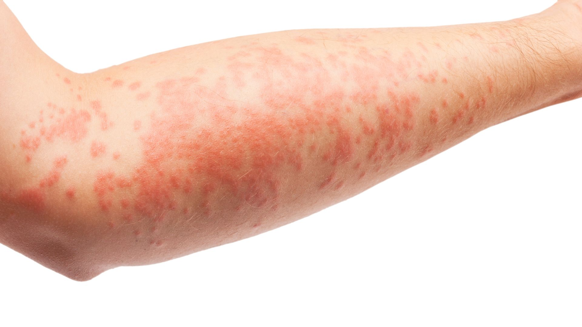 Are you suffering from eczema?
